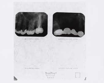 photo of X rays
